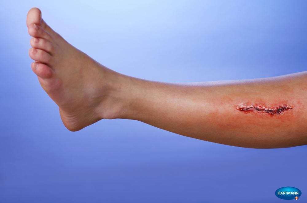 cut-wounds